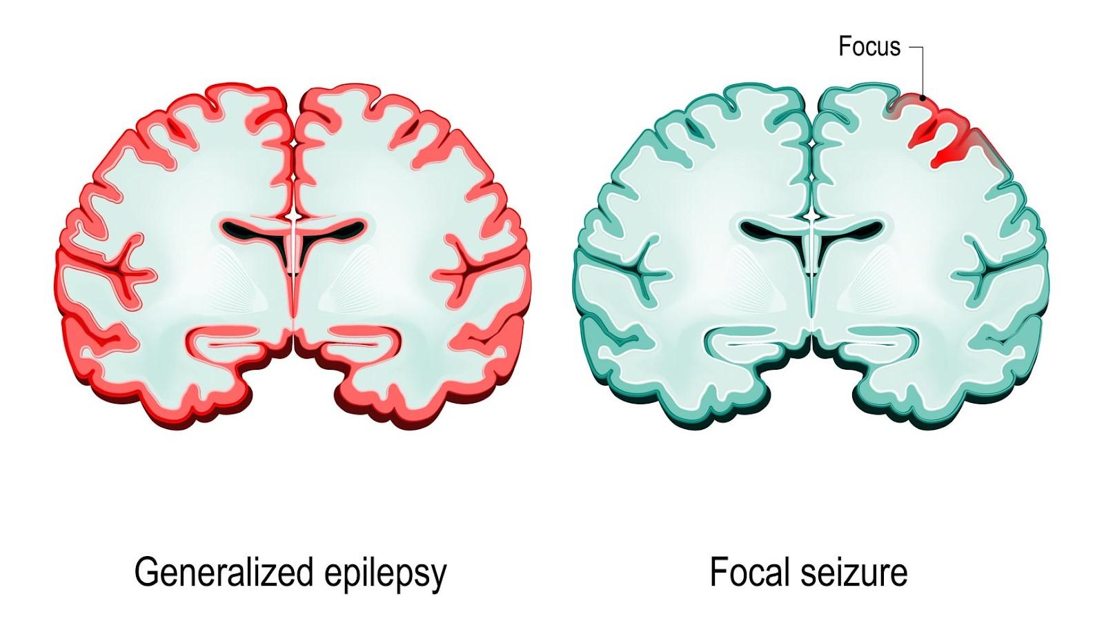 Generalized Epilepsy vs. Focal Seizure